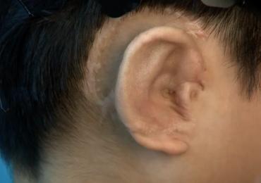 A successfully regenerated ear-shaped cartilage. Photo via ebiomedicine.