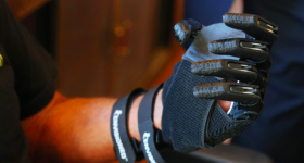 Piedra's prosthetic left hand. Photo via Tampa Bay Times.