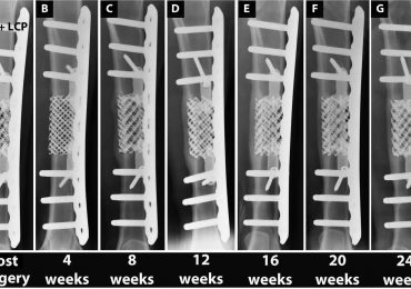 Evidence of Charité's improved 3D titanium implants at various stages post-surgery. Image via Science Translational Medicine
