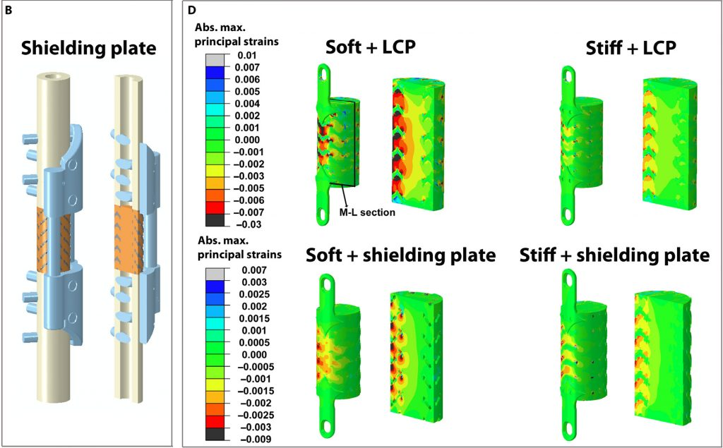 "Comparably ""soft"" and ""stiff"" 3D titanium scaffold designs with shielding plate or locking compression plate (LCP) reinforcements. Image via Science Translational Medicine"