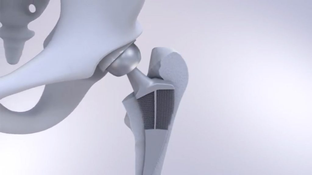 TU Delft's auxetic/tradional hip implant. Image via TU Delft on YouTube