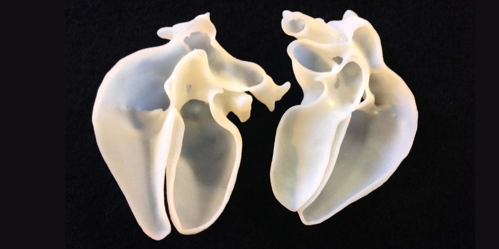 Cross-sectional 3D printed heart models from the installation. Photo via Sofie Layton.