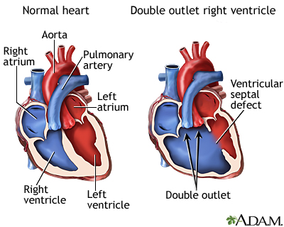 Graphic demonstrating the effect of double outlet right ventricle (DORV) disease. Image via ADAM