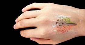 3D printed living tattoo with 3 different live strains. Photo via Wiley-VCH Verlag.
