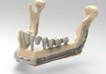 Fully reconstructed mandible with plate and dental implants inserted. Image via Renishaw.