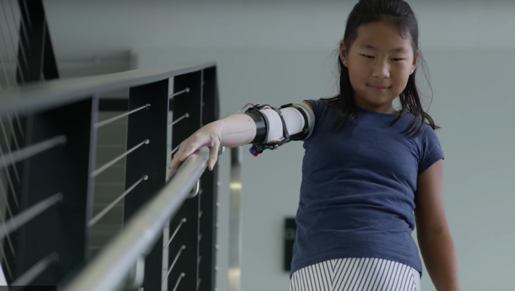 10 year old Momo Sutton, the first recipient of a 3D printed prosthesis from Unlimited Tomorrow. Photo via Unlimited Tomorrow.