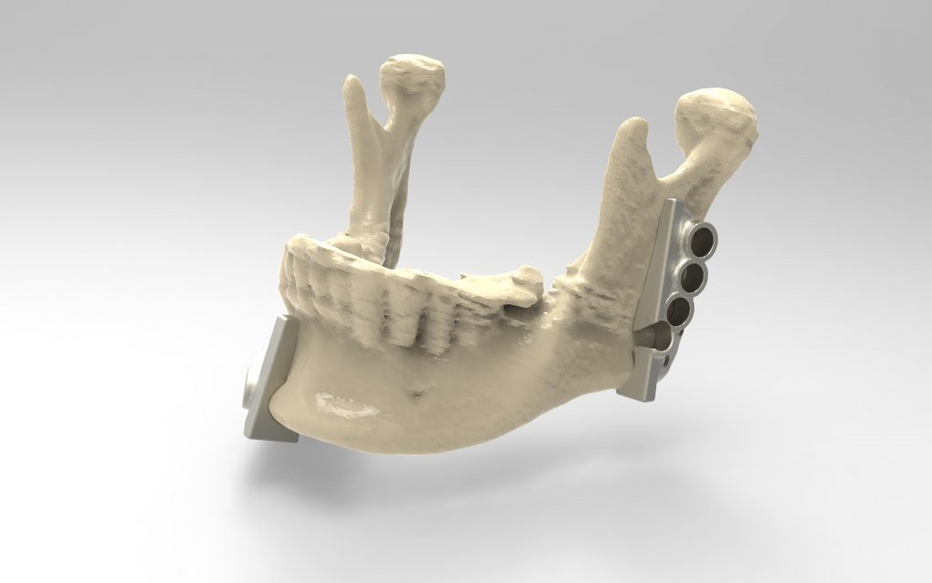 3D printed cutting/drilling guides show where the surgeon can precisely measure where the jaw will be cut and drill holes to fit the mandible plate. Image via Renishaw.