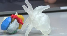 An example of a 3D printed heart used for surgical planning. Photo via University of Wisconsin.