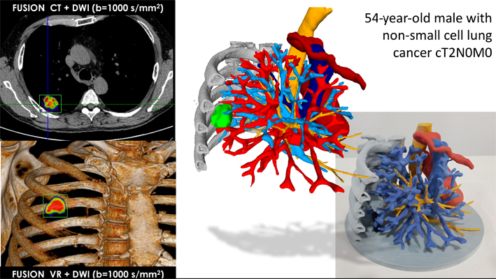 Hybrid scans merged with Phillips' IntelliSpace Portal and edited with Meshlab. Image via Dr Jordi Broncano.