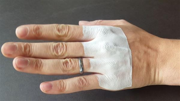 3D printed bandages, printed directly onto skin. Photo via The Temple News.