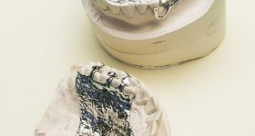CoCr 3D printed removable partial dentures. Photo via Renishaw.
