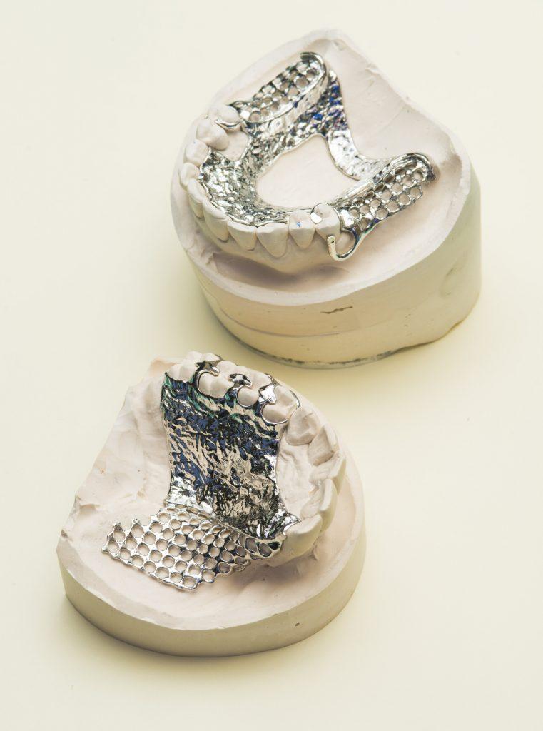 CoCr 3D printed removable partial dentures. Photo via Renishaw.