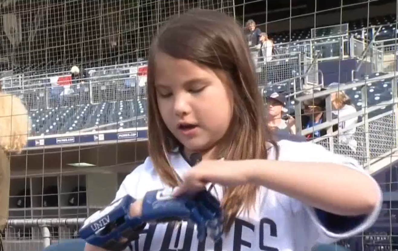 Hailey Dawson with her 3D printed prosthetic hand. Photo via NBC San Diego.