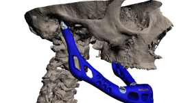 3D model showing attachment of Xilloc' 3D printed full jaw implant. Image via XIlloc