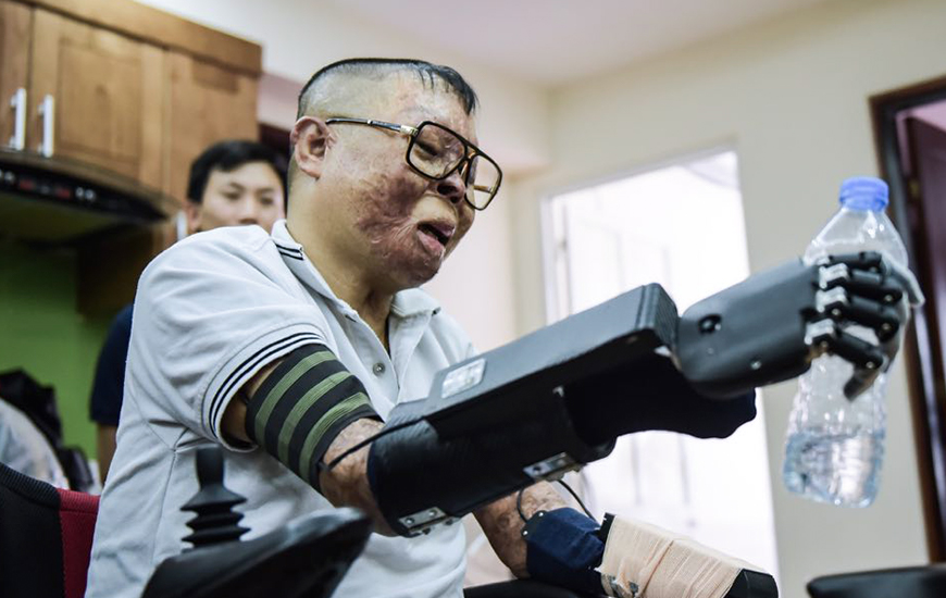 Duong picks up a water bottle using 3D printed bionic arm