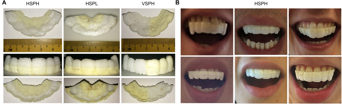 ETH Zürich's 3D printed drug-eluting mouthguards. Image via Science Advances, supplementary materials.