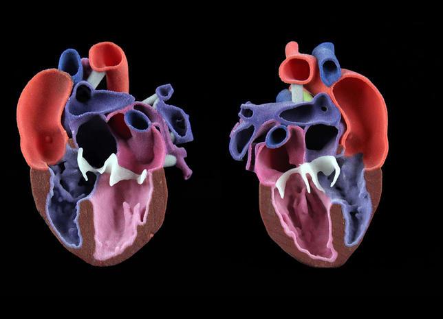 CJP pediatric heart model Photo via 3D Systems.
