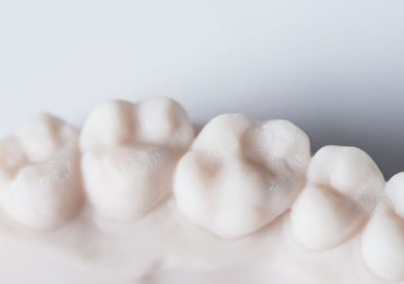 Carbon gets its teeth stuck into a new 3D printing partnership. Photo via Carbon