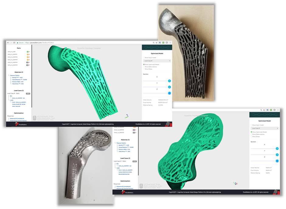 Topology optimization of a 3D printed bone implant through CogniCAD. Image via Paramatters