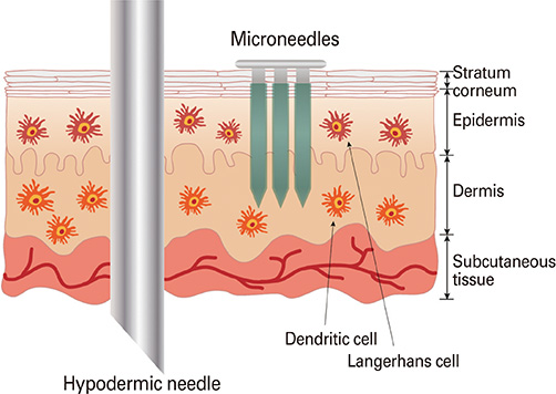 Insertion of a hypodermic needle vs. microneedle array. Image via Clinical and Experimental Vaccine Research 2014/Korean Vaccine Society.