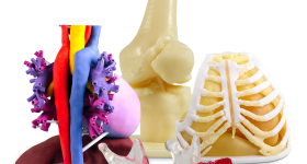 3D printed anatomical models. Photo via 3D Systems