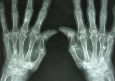 Arthritis breaks down the cartilage between joints, leading to pain, stiffness and swelling. Image via Medical Xpress.
