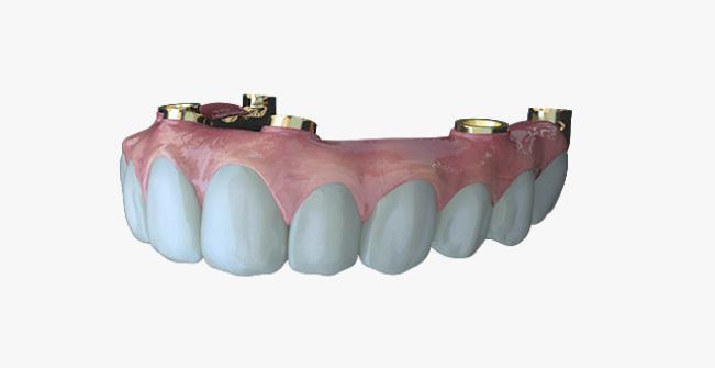 An Evo Solution dental implant. Image via Evo Dental.