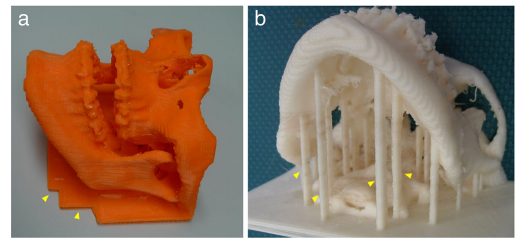 3D printed dental models with support structure to prevent deformation. Photo via Springer International Publishing