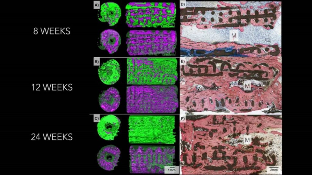 3D imaging showing bone growing through a 3D printed implant over the course of 6 months. In images A. B, C, bone is colored green and implant is colored purple. In D, E, F bone is stained pink, and the scaffold is shown in black. Image via Journal of Tissue Engineering and Regenerative Medicine