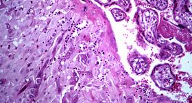 Placenta cells