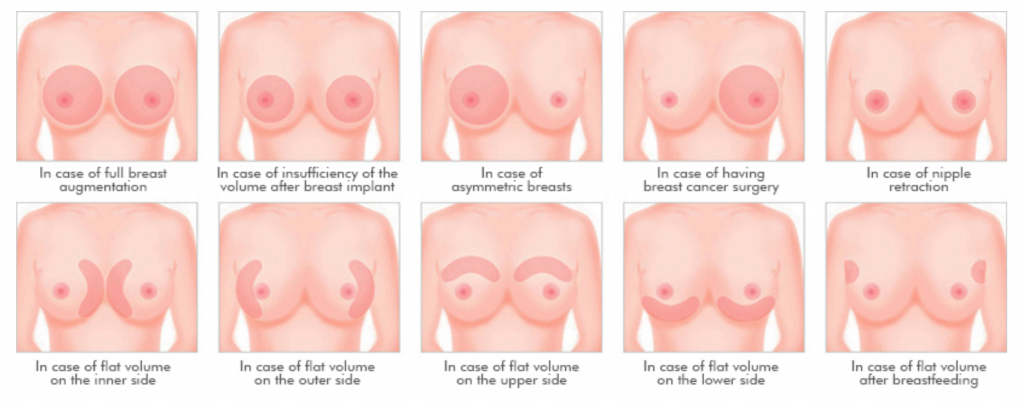 Types of breast surgery. Image via Wonjin Aesthetics