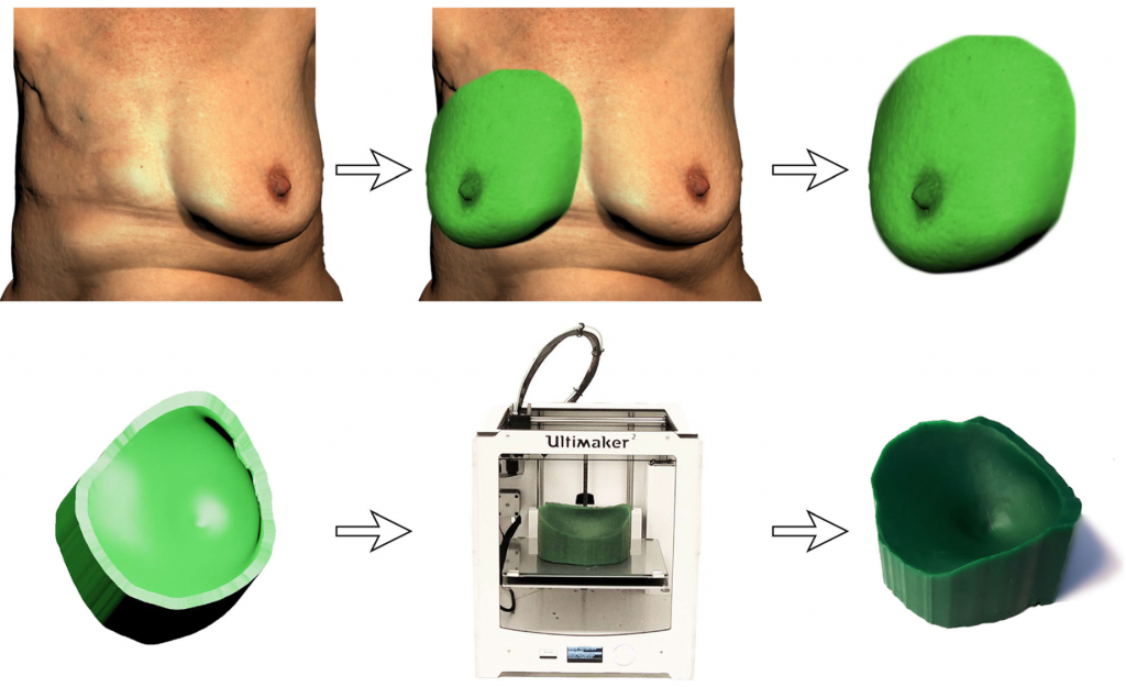 The process of producing a 3D printed breast guide. Image via European Journal of Plastic Surgery.