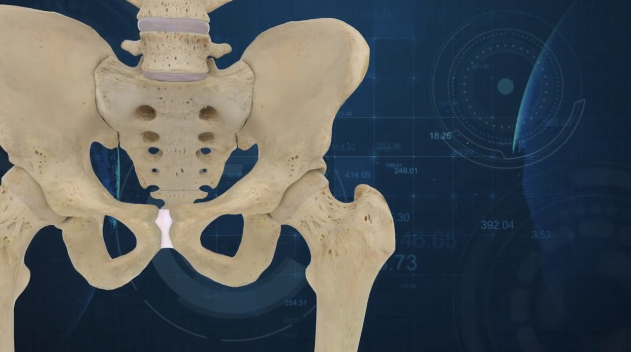 The ConforMIS Hip System imaging software. Image via ConforMIS.