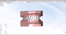 Maestro 3D Ortho Studio software. Image via AGE Solutions.