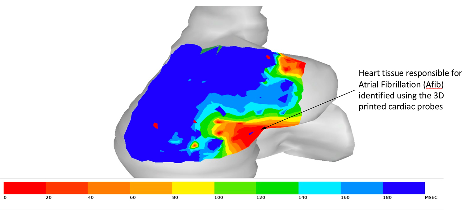 A heat map of the electrical activity of a heart projected onto a computer-simulated model of the right atrium. Image via Kevin Cyr.