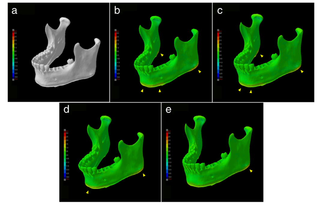A visualization of shape error, d-e shows that the deformation of shape was due to the model's own weight. Photo via Springer International Publishing