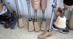 Featured image shows a collection of prosthetics currently used by Syria Relief. Photo via Syria Relief