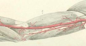 An illustration of arteries. Image via CU Boulder.
