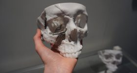 To 3D, or not to 3D? That is the question. 3D printed skull and implants by Renishaw. Photo by Beau Jackson