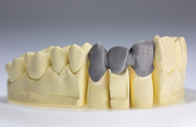 3D laser printing ensures the accuracy required for crowns and bridges. Image via Proslab