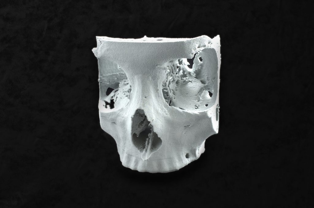 Skull model 3D printed in Flexa Bright. Photo via Sinterit