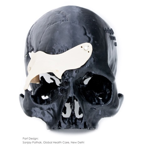 A Medical PEEK 3D Printing skull implant from Apium. Image via Apium Additive Technologies