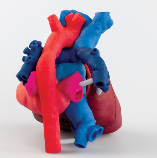 A 3D printed heart model. Photo via 3D Systems/OpHeart.