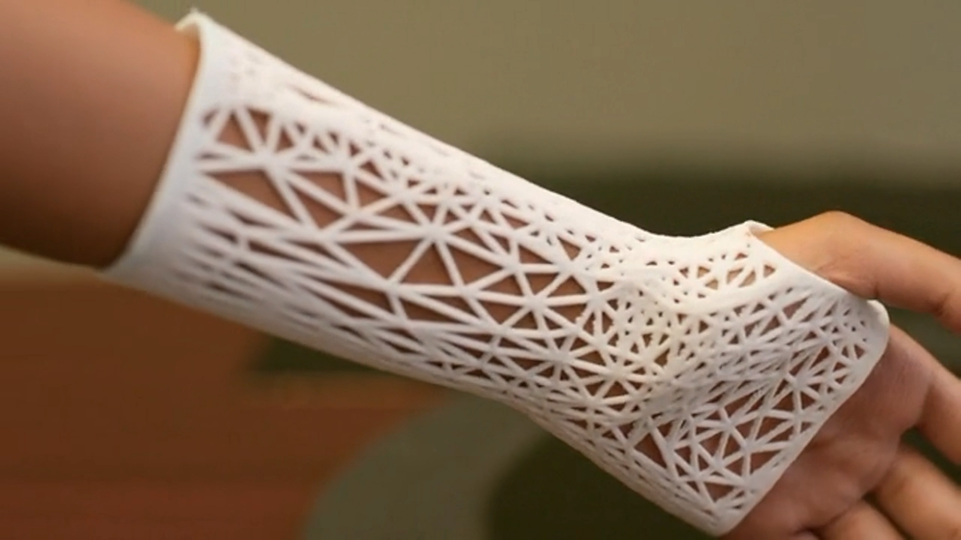 A 3D printed arm cast by PrinterPrezz. Image via PrinterPrezz