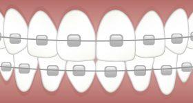 Braces illustraition. Image via Kreatikar on Pixabay