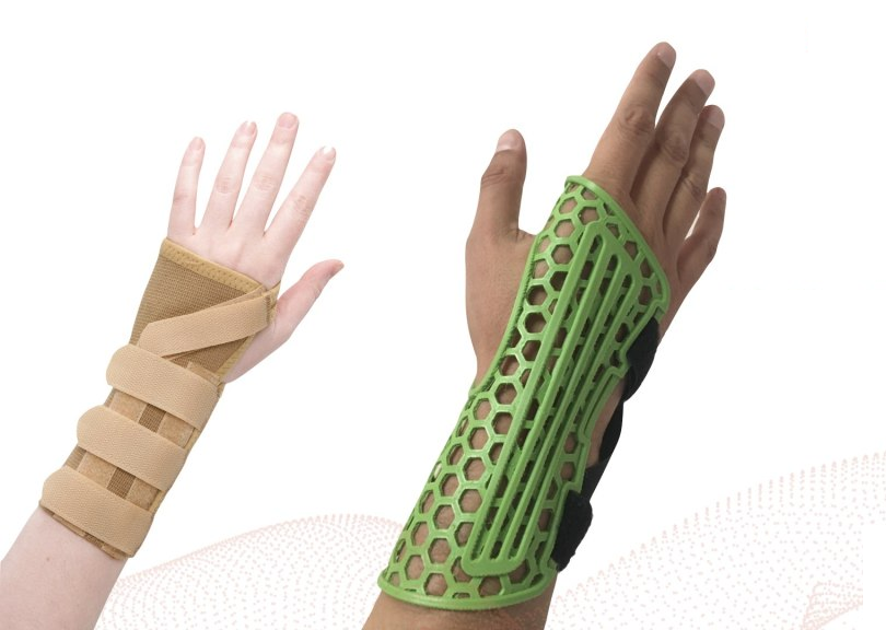 A Copper3D printed antibacterial cast (right) next to a conventional cast (left).