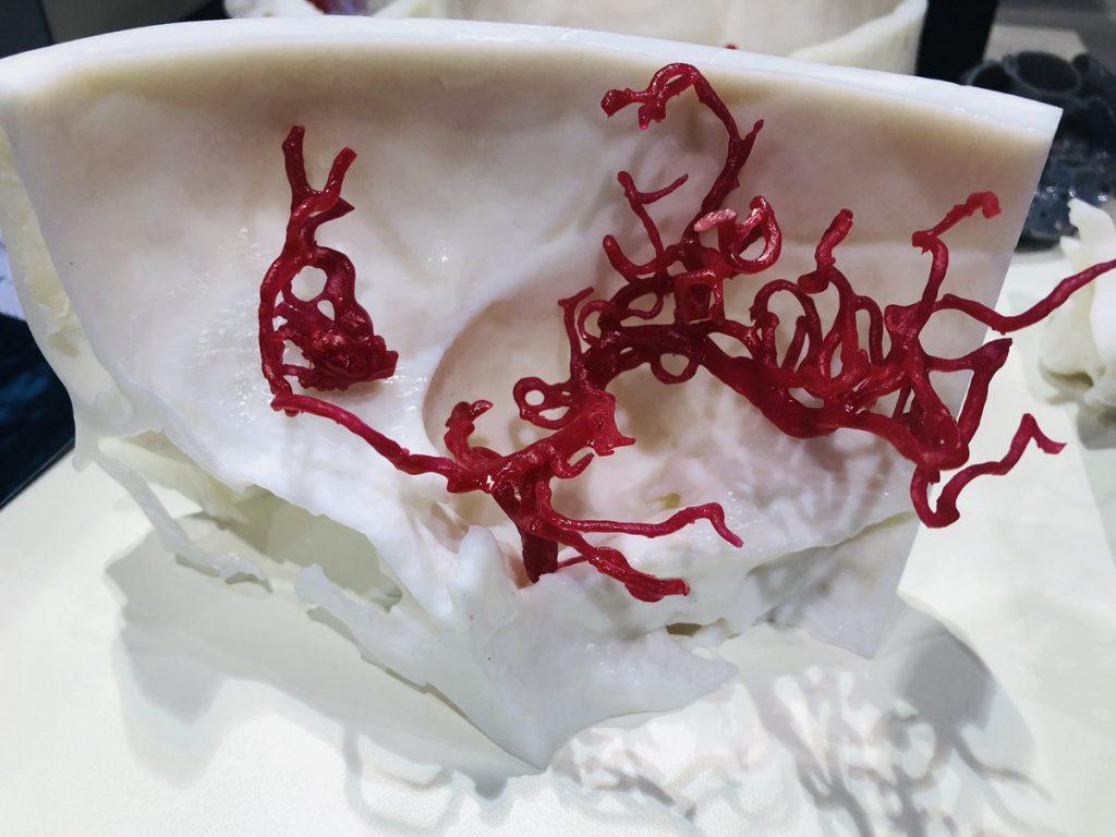 3D printed medical model. Photo via axial3D