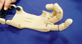 A 3D printed hand prosthetic created by Anatomiz3D. Photo via Anatomiz3D.