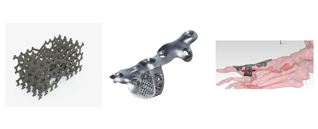 From left to right: Additive Orthopaedics's lattice structure, plate / wedge orthopaedic device, and diagram of installment in the foot to combat a toe fracture. Images from Additive Orthopaedics.