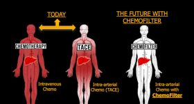 Graphical demonstration of how chemotheraphy drugs spread through the body. Image via UC Berkeley